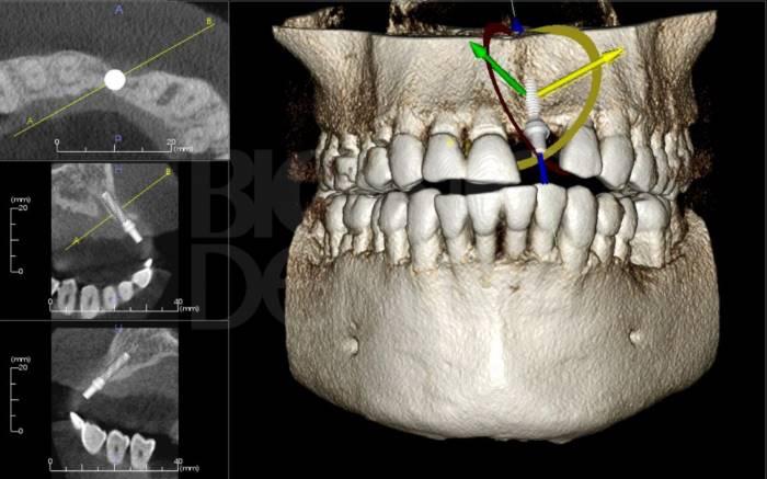 3D снимок зубов.jpg