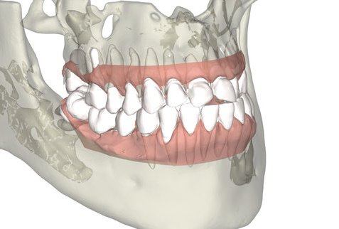 3D_Smile_teeth_movement_with_roots.001.jpg