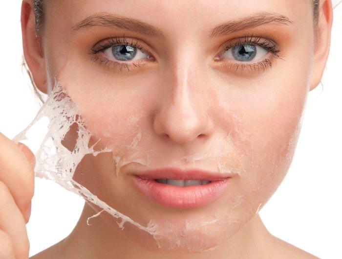 Химические пилинги для лица