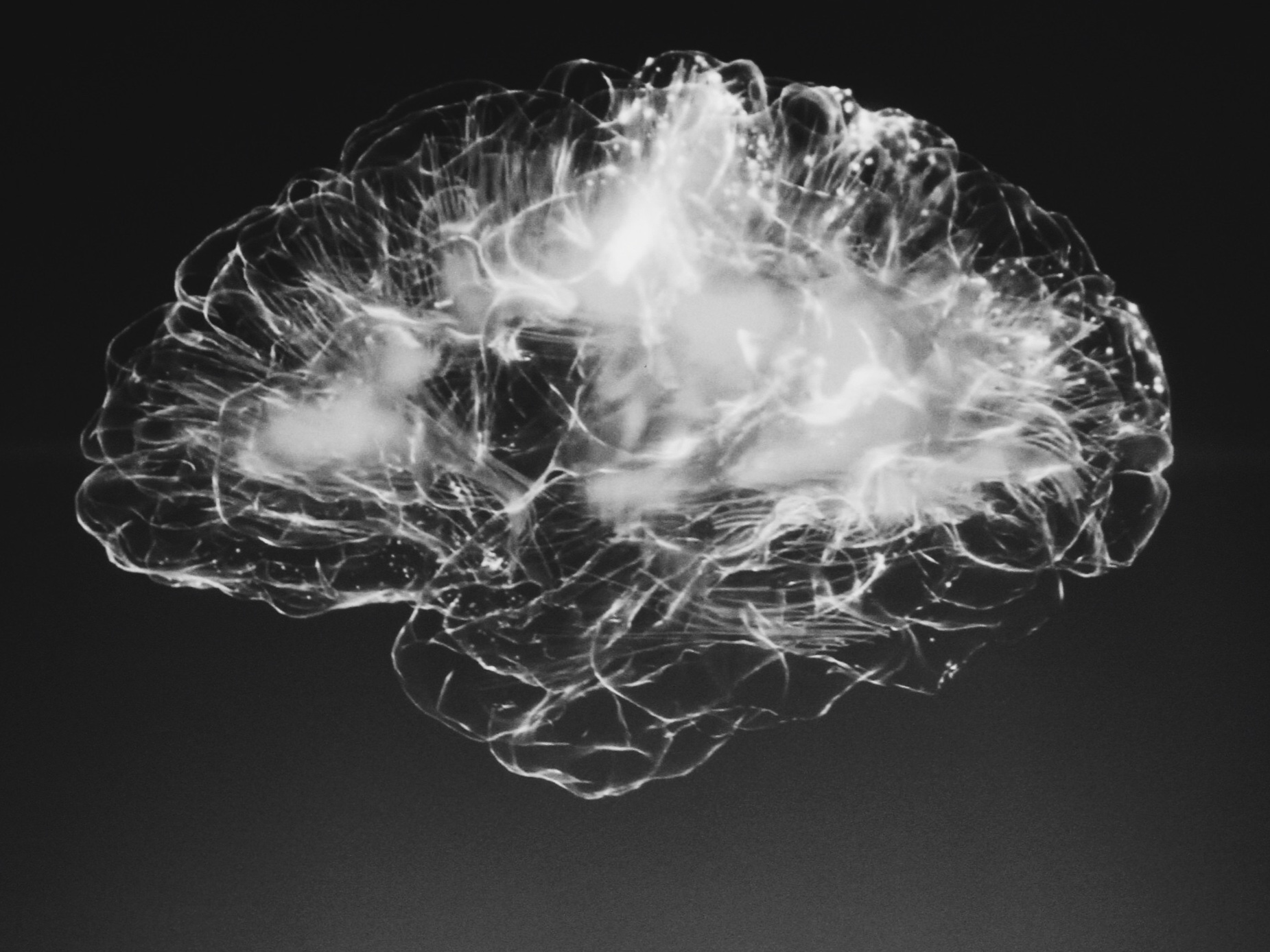 Neurofeedback - The Power to Change Your Brain
