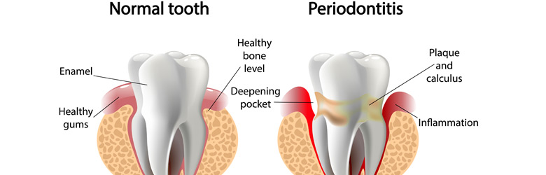 Periodontal-Gum-b.jpg
