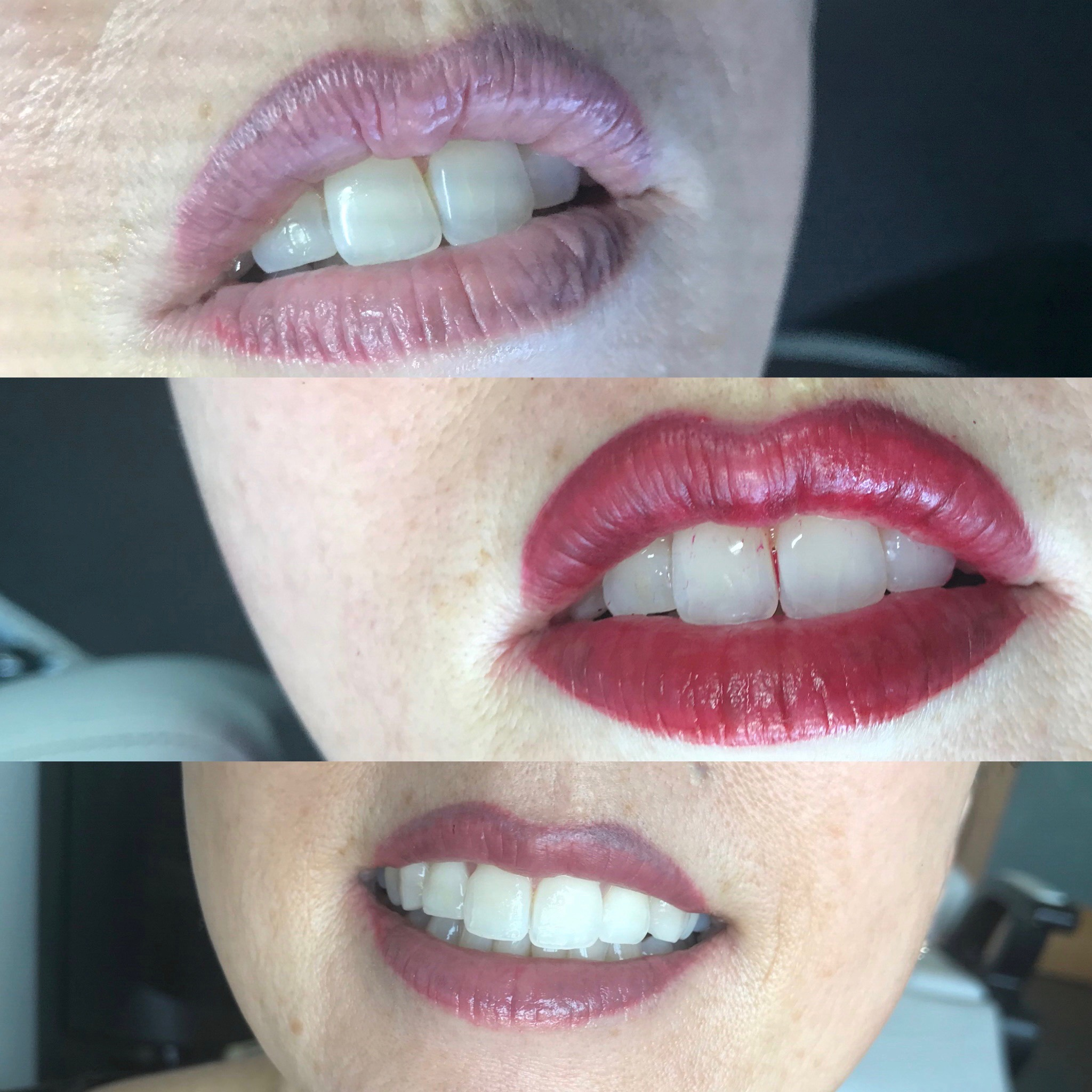 permanent lip color or lip blushing