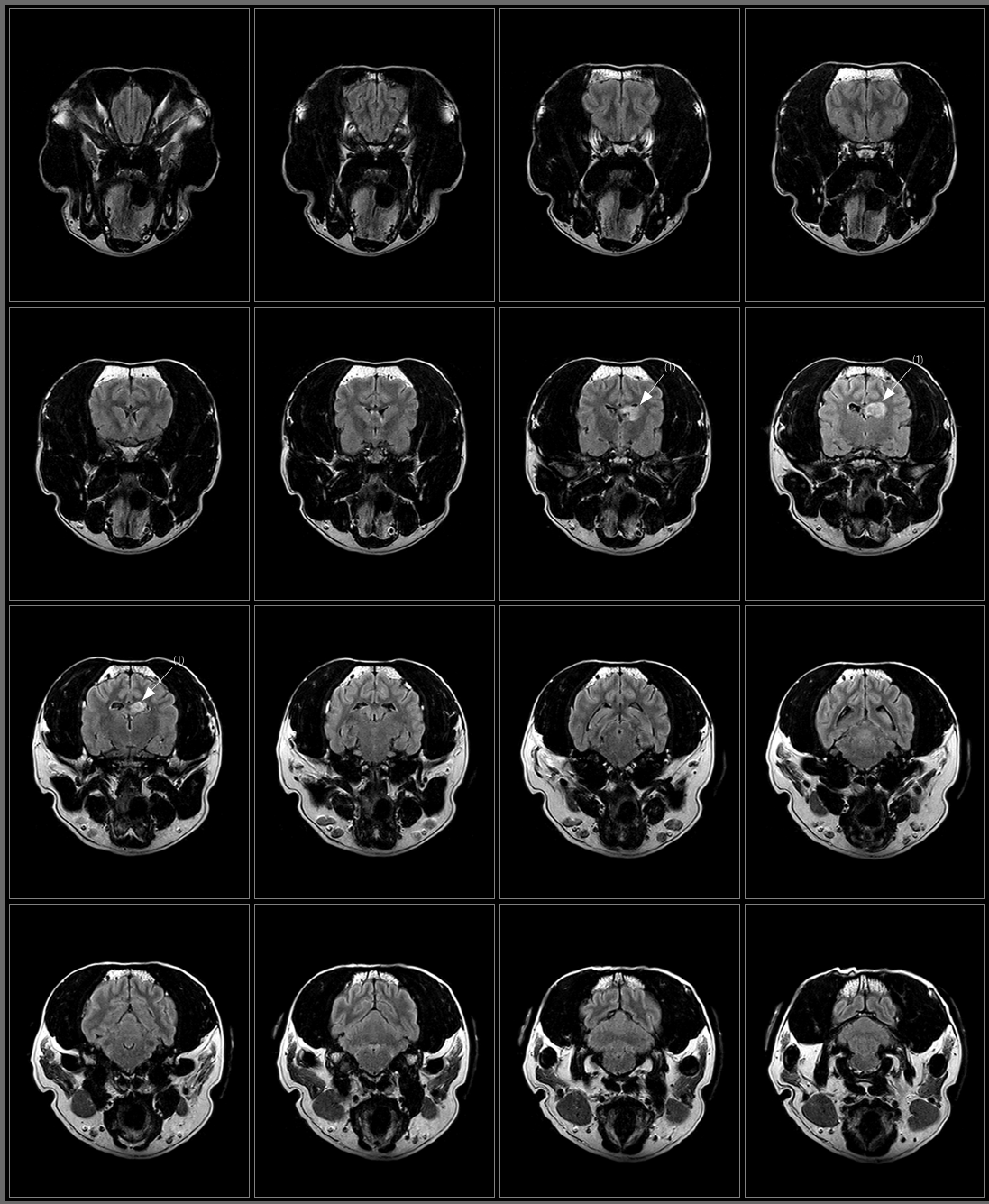 Brain FLAIR Axial.png