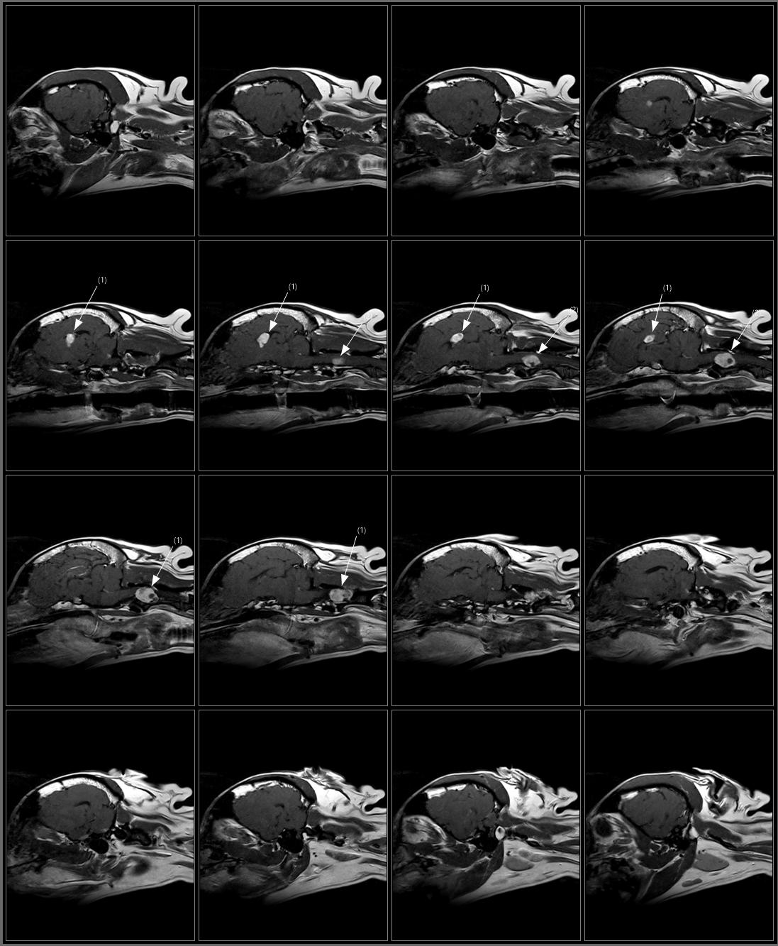 Brain T1 SE Sagittal Post.png