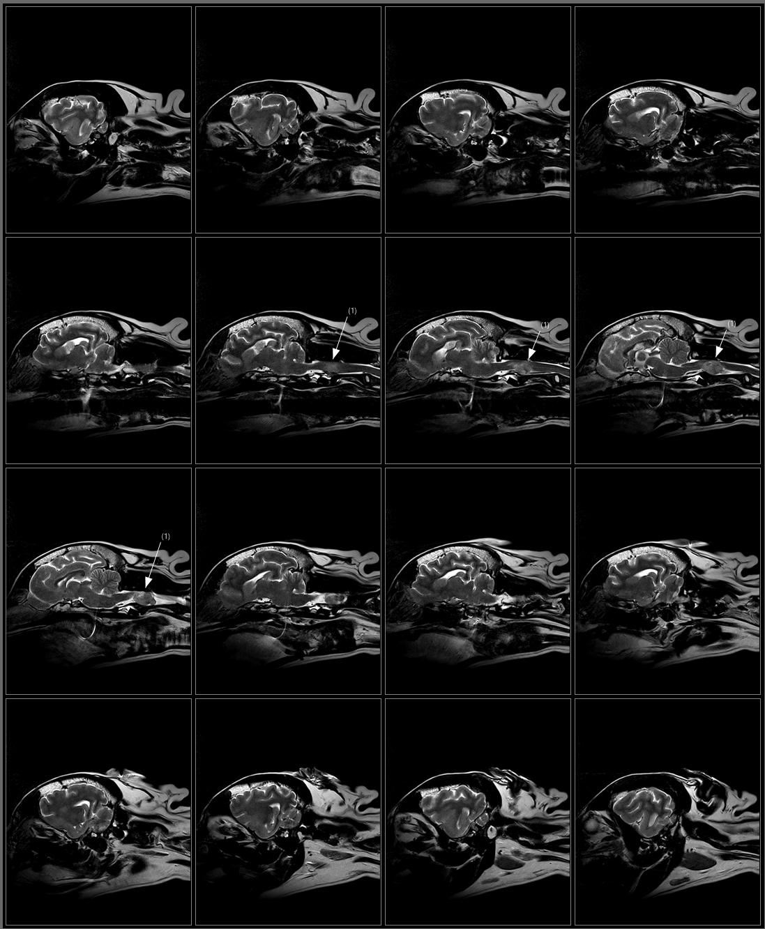 Brain T2 FSE Sagittal.png