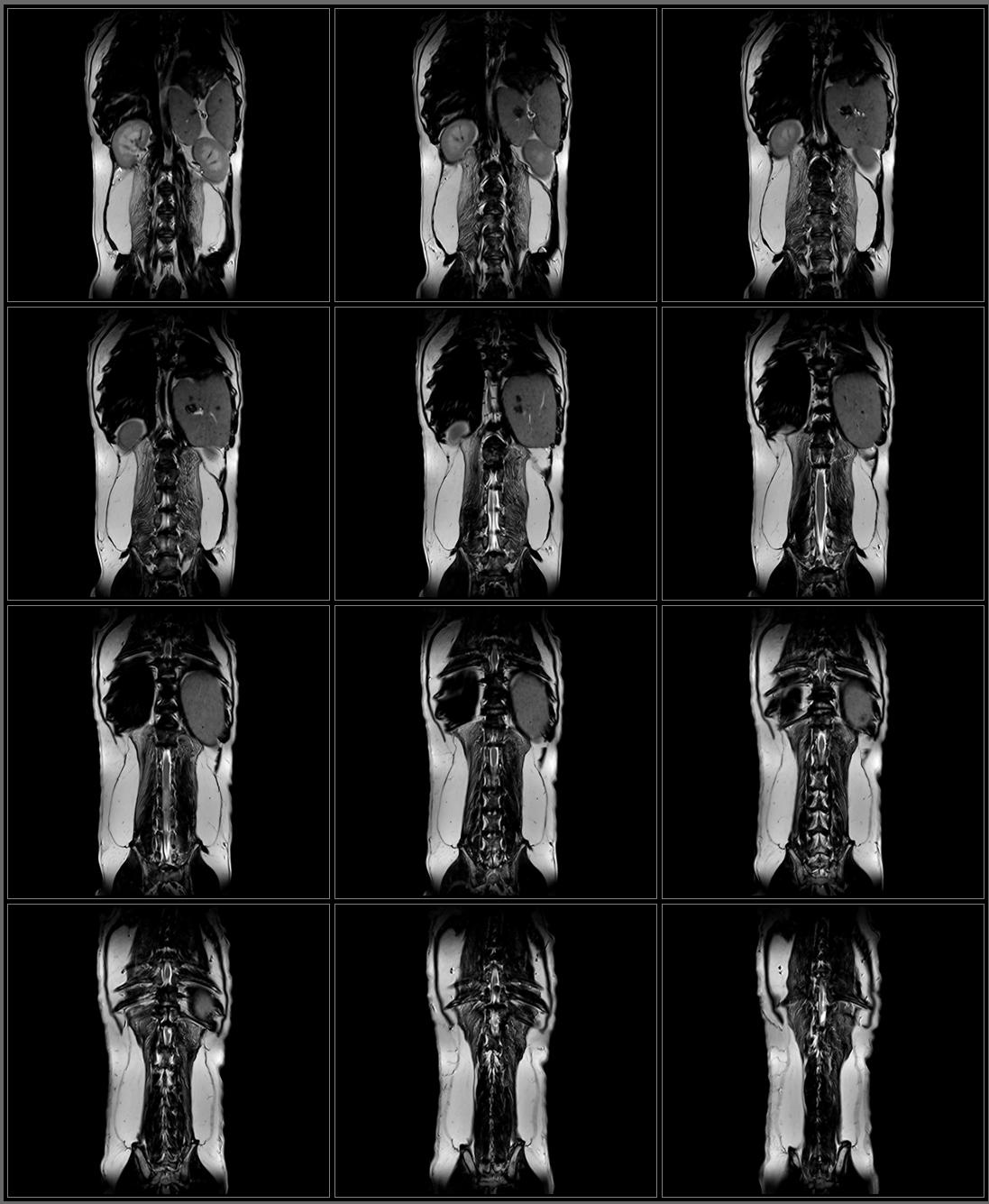 TL Spine T2 FSE Dorsal.png