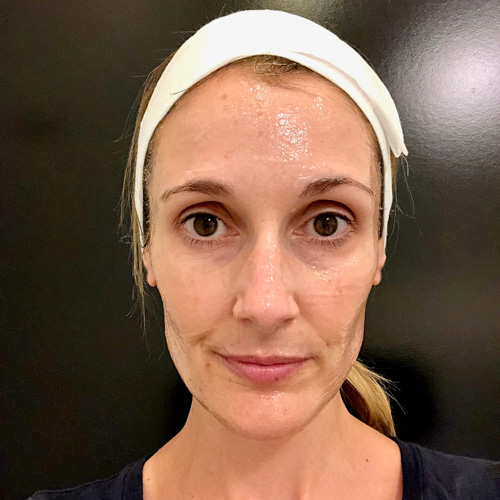 Numbing gel is applied approximately 30 minutes before the treatment. It covers your entire face.