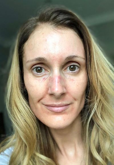 The day after the treatment. As you can see, your skin does not stay red for long.