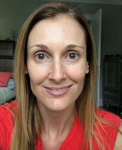 One week later, my skin is clearer, pores smaller and fine lines softened.