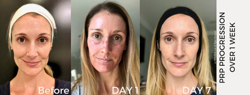 Photo progression of just before my treatment, immediately following my treatment and 1 week after my treatment.