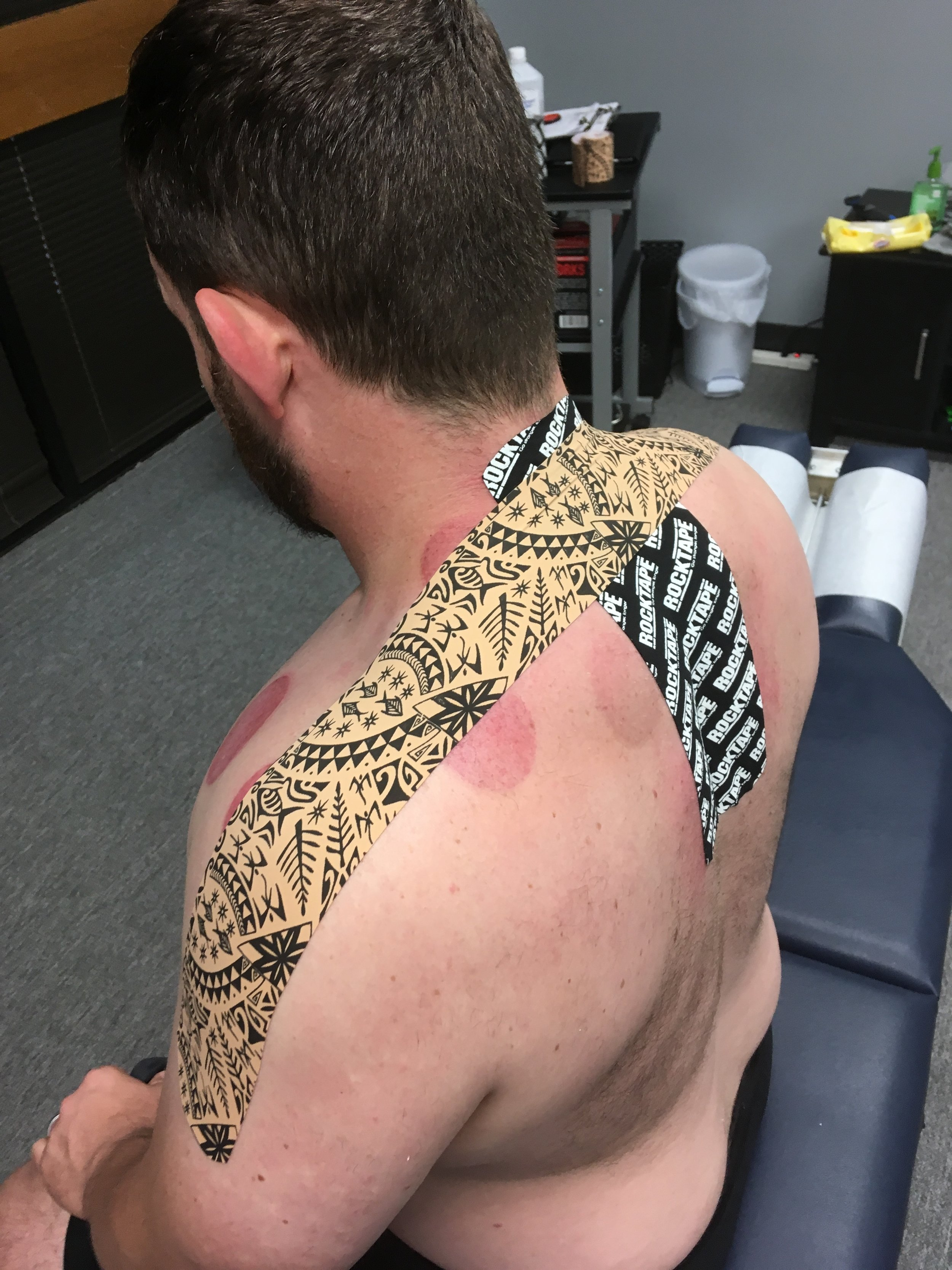 A combination of Dynamic Tape and Rocktape with Cupping treatment for neck and shoulder pain.
