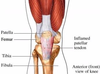 knee+tendinitis.jpg