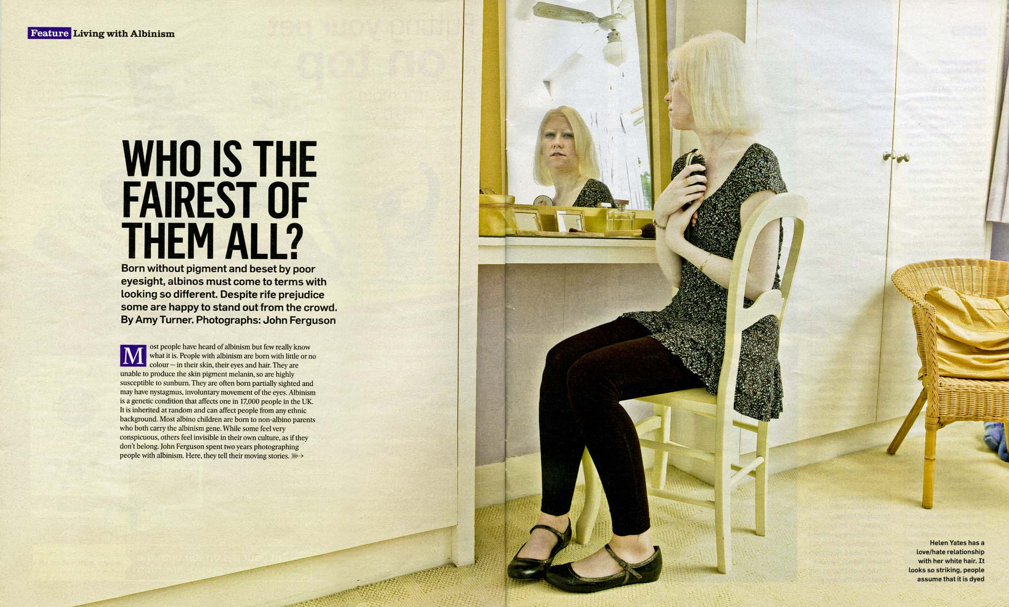 Living with Albinism Project Sunday Times Magazine.JPG