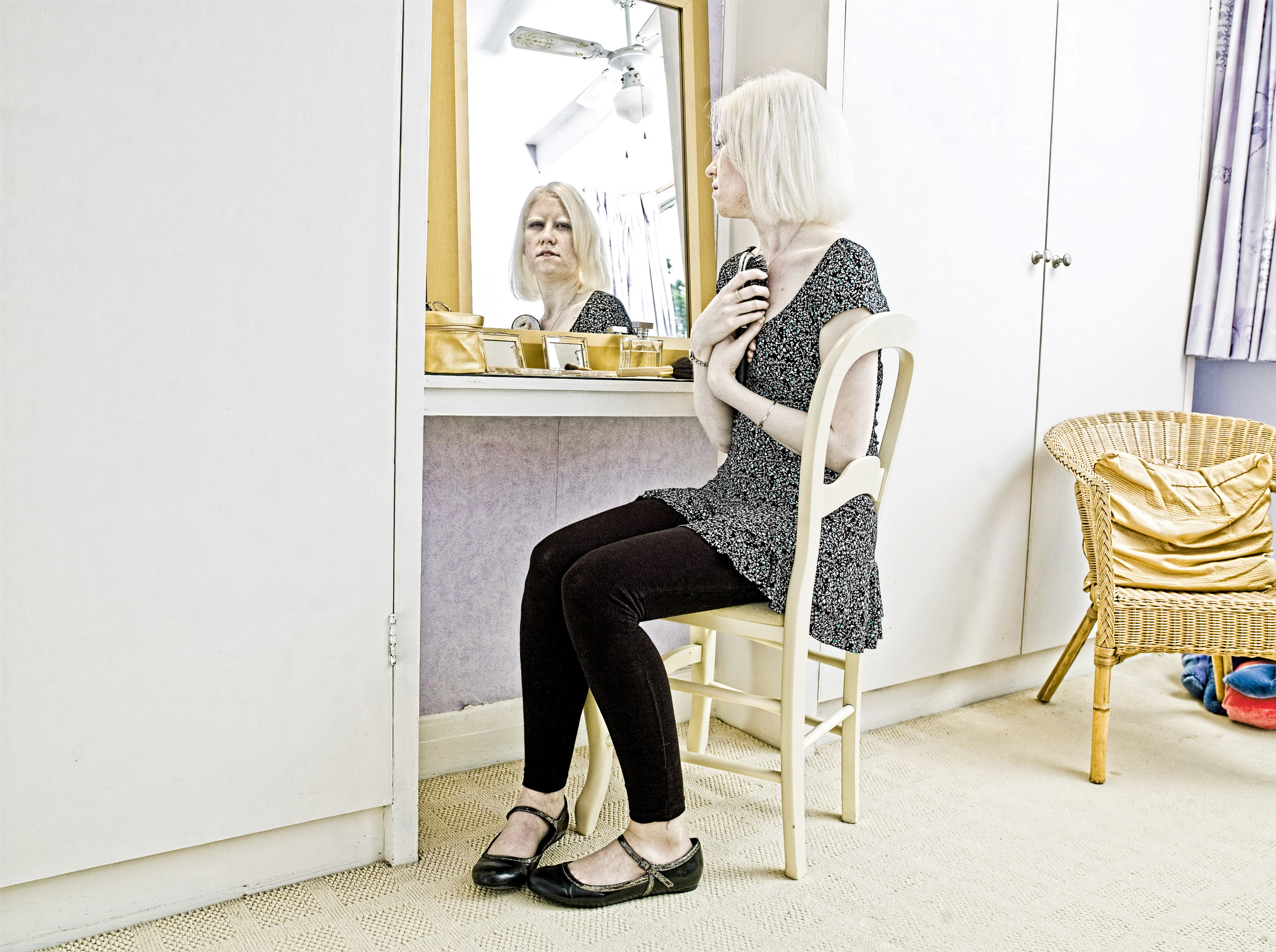 Living With Albinism-6.jpg