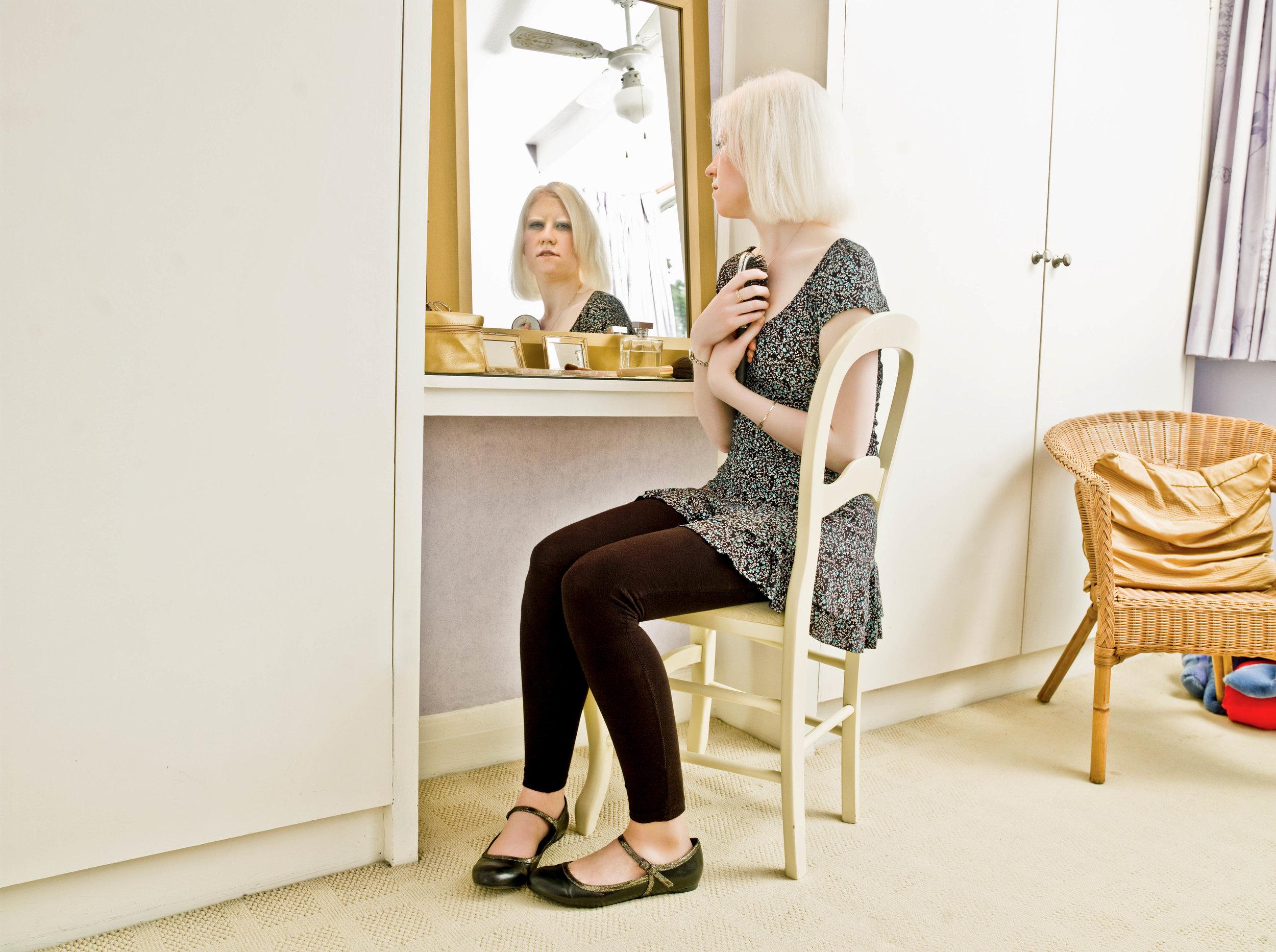 Living With Albinism-Helen.jpg