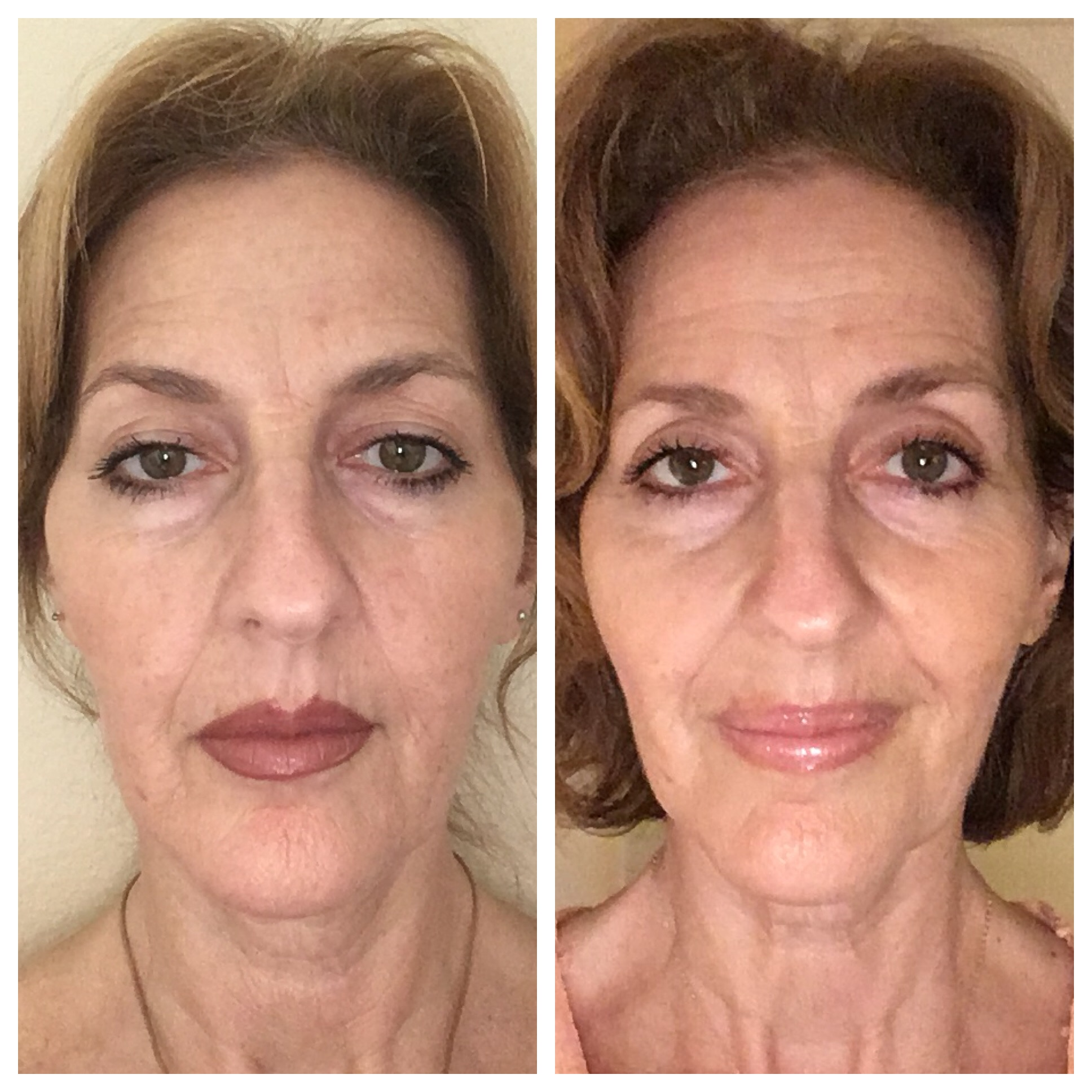 - In just a few weeks, the lines around the mouth have softened, the lips look more relaxed, and nasolabial folds have softened.