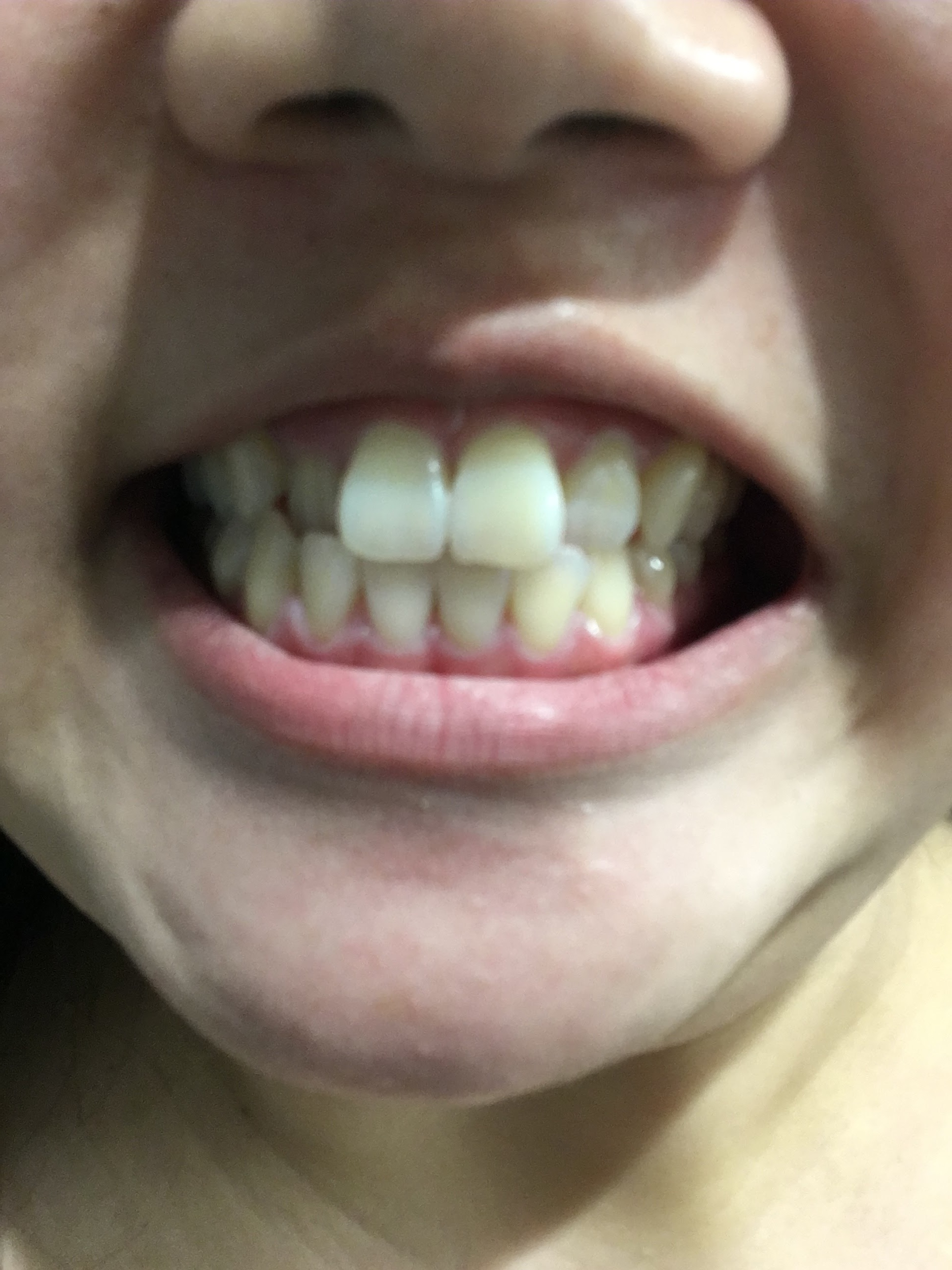 Smile Direct Club Week 2 Aligners Don'T Fit