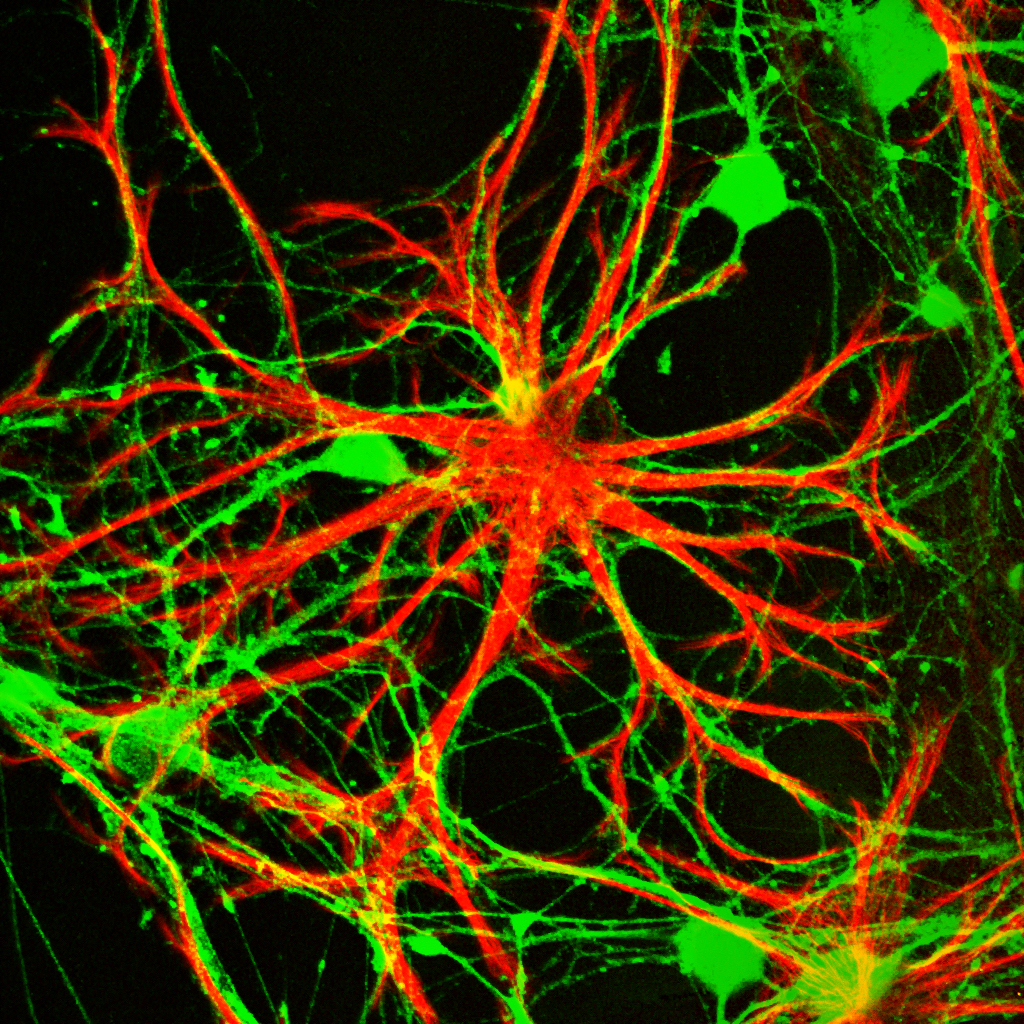 Astrocyte (red) / Neuron (green) co-culture