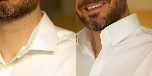 Unruly collars -
