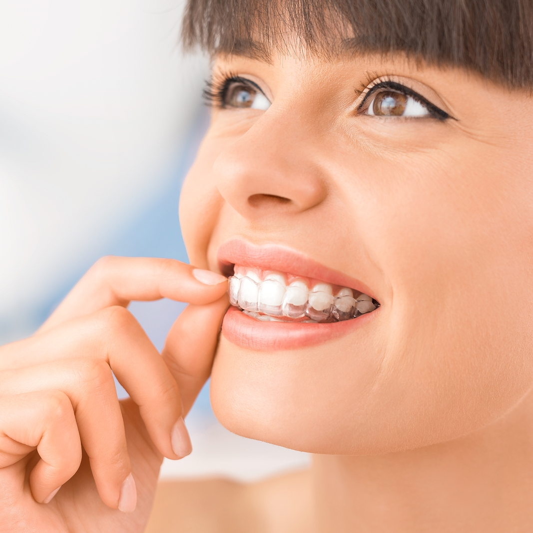 bigstock-Woman-Wearing-Orthodontic-Sili-227149273.jpg