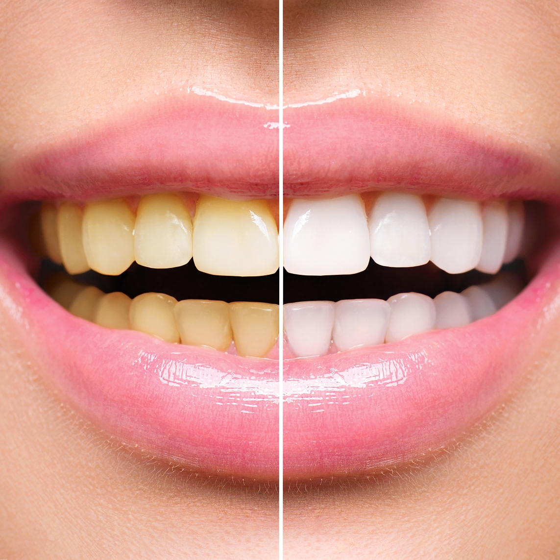 bigstock-Woman-Teeth-Before-and-After-W-136913312.jpg
