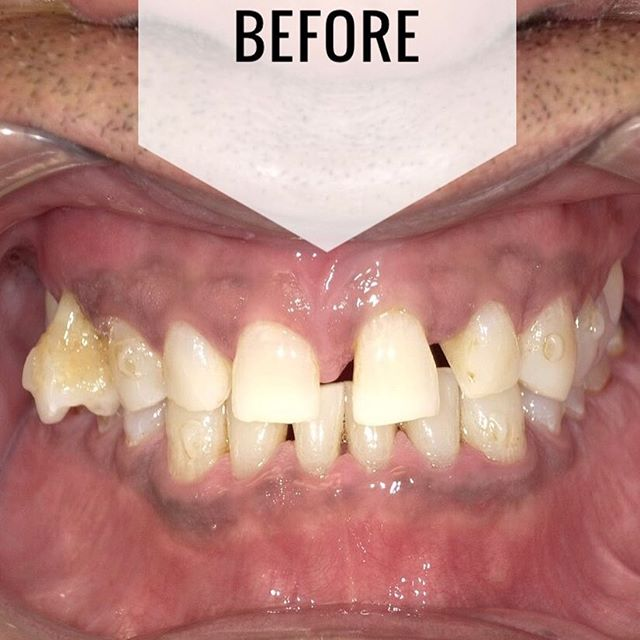 Here is a quick before and after on this Friday! This patient came to us with gaps, crooked teeth and needing extractions. With these beautifully constructed veneers that match the texture, density and color of his natural teeth, his smile and confidence have been completely transformed. This is truly an unbelievable transformation. Call us for a consult 914.241.8200 • • • #dental#dentalhygienist#cosmeticdentist#cosmeticdentistry#health #healthliving#healthy #hygiene#dentist #smile#teeth#teethwhitening#newyork#westchester#ny#eliteinvisaligndentist#cosmeticdentist#soda#invisalign #veneers#lumineers#zoom#dds #nyc#porcelainveneers#ortho#oralhygiene#igdentist #wedding #engaged #nyc