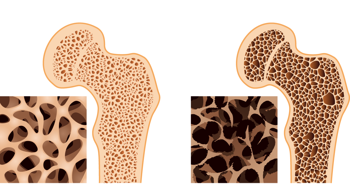 Fight Osteoporosis - Whole body vibration has also been found to aid bone mineral density which can help fight the effects of osteoporosis.