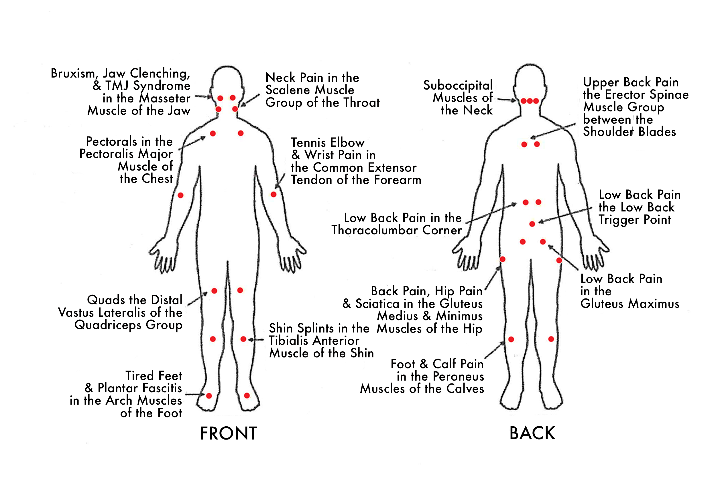 trigger-points_full-page.png