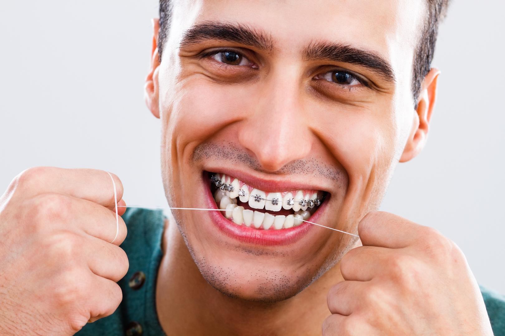 Hässlich zahnspange Zahnspange