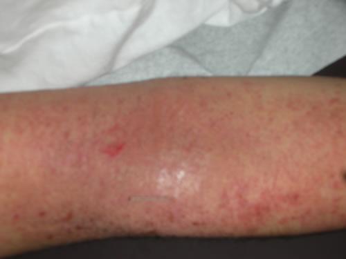 Atopic skin at first visit