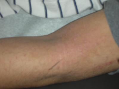 Atopic skin after third visit