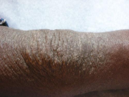 Eczema on knee