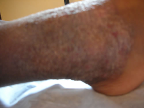 Eczema with scratching