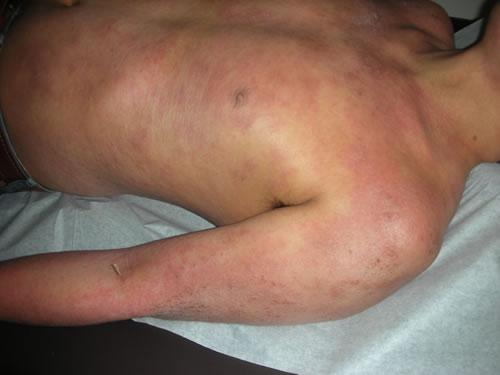 Severe case of atopic skin