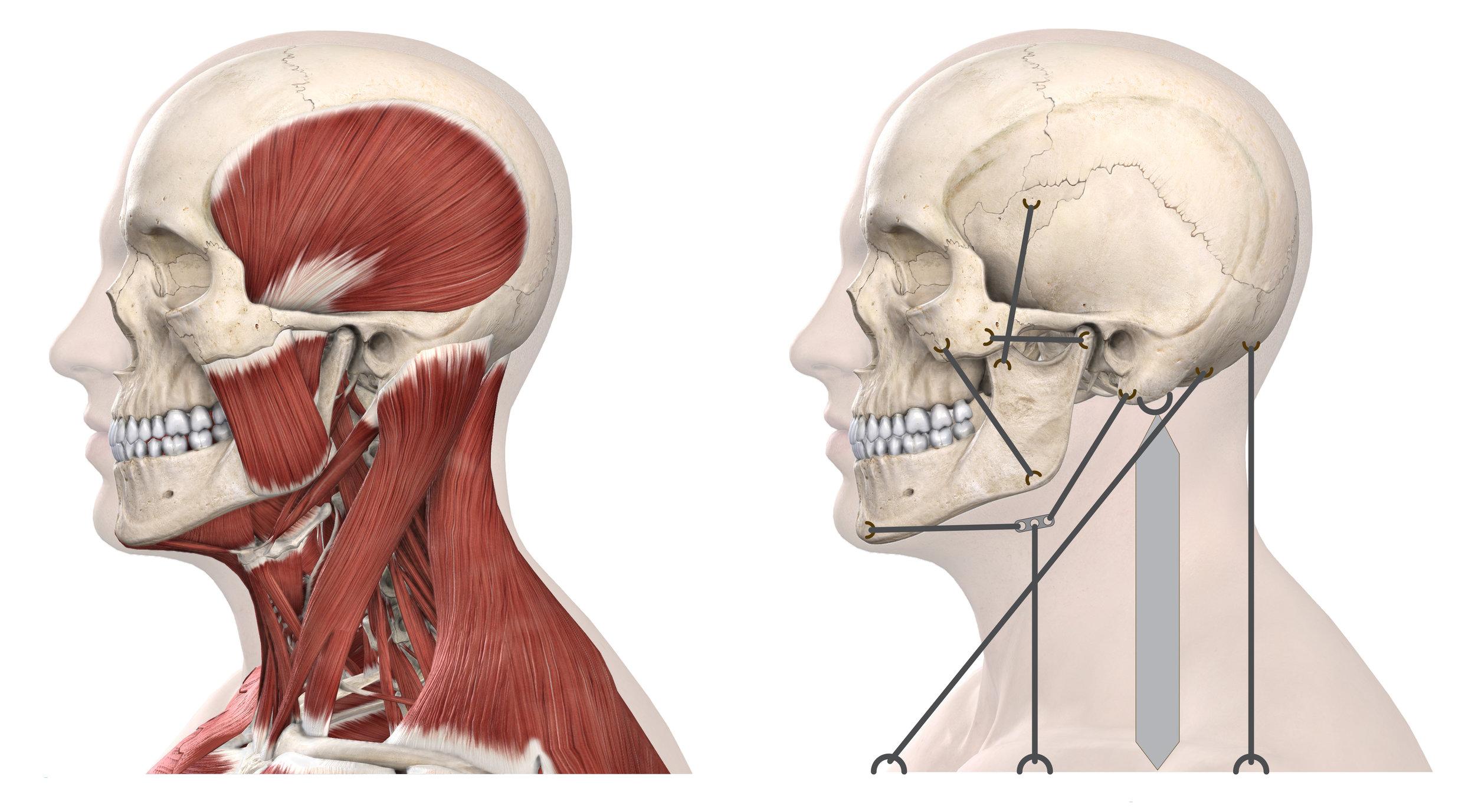 TMJD Skull Muscle Strings.jpg