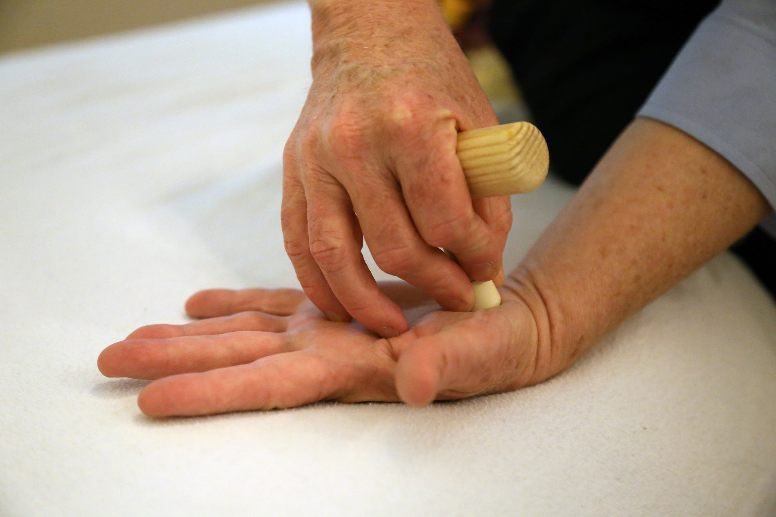 T-Bar treatment of the metacarpal spaces