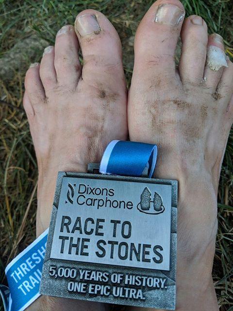 Poor feet!