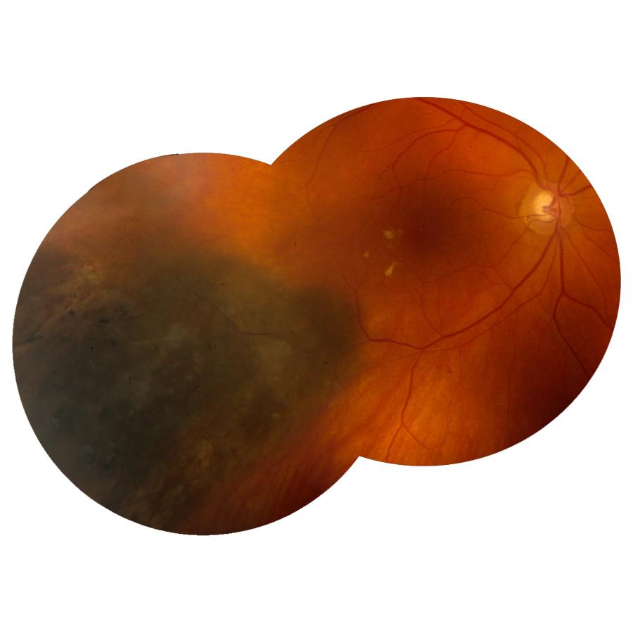 ocular oncology.jpg