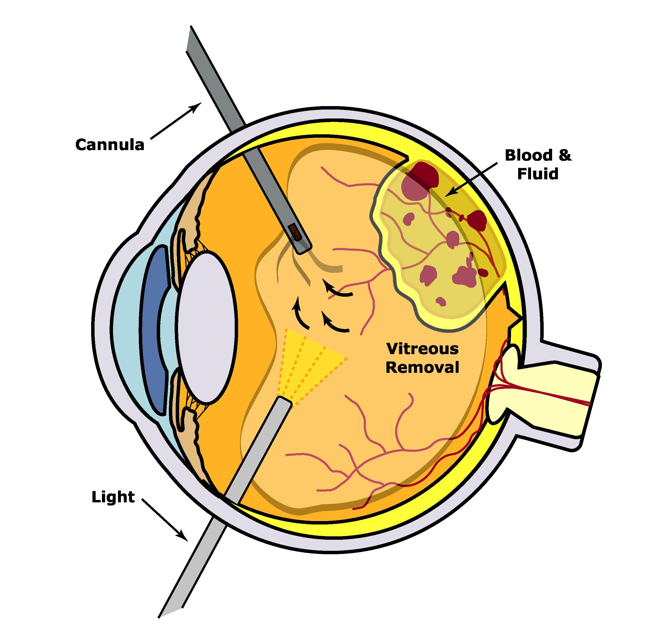vitrectomy.jpg