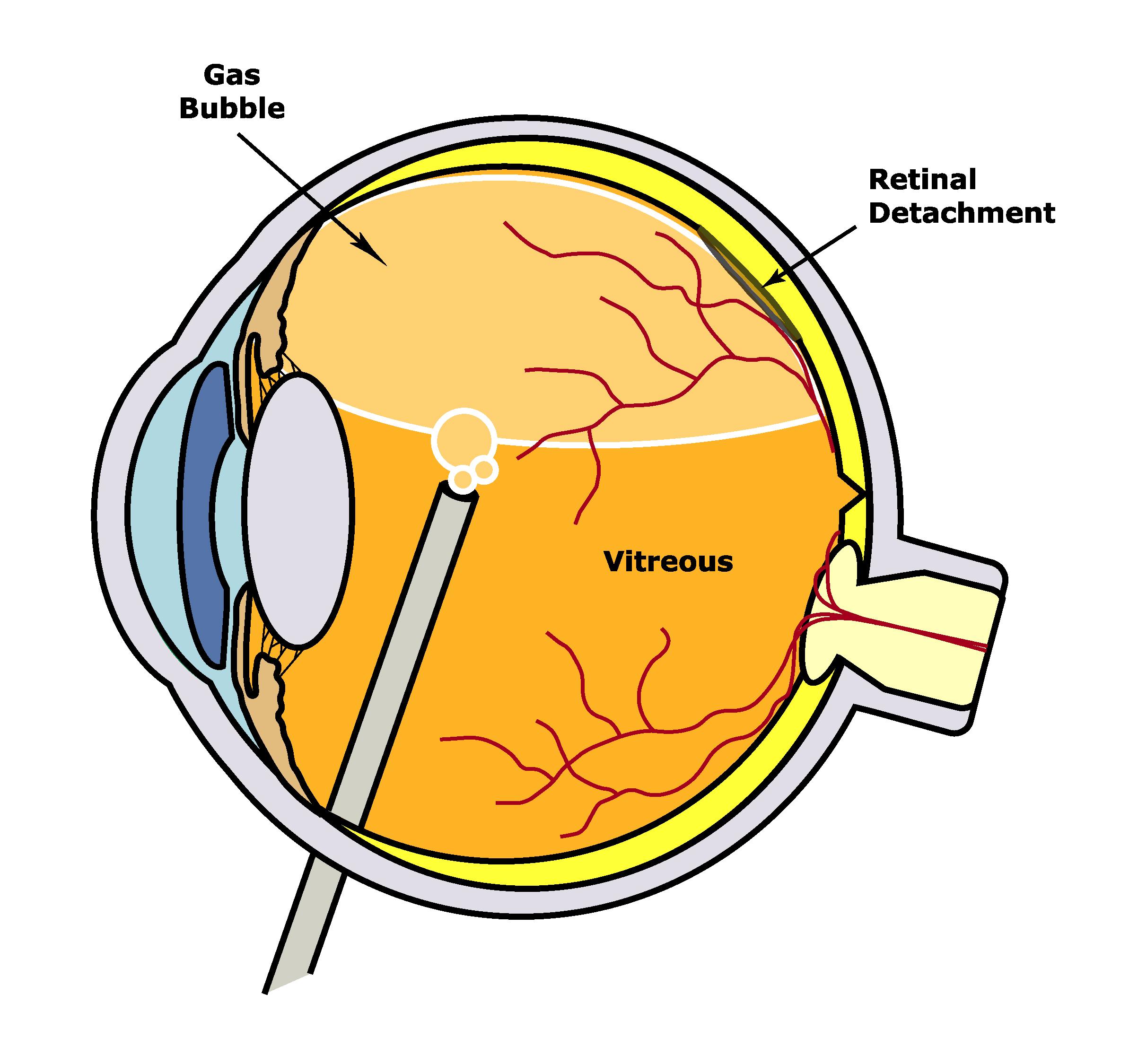 pneumatic retinopexy.jpg