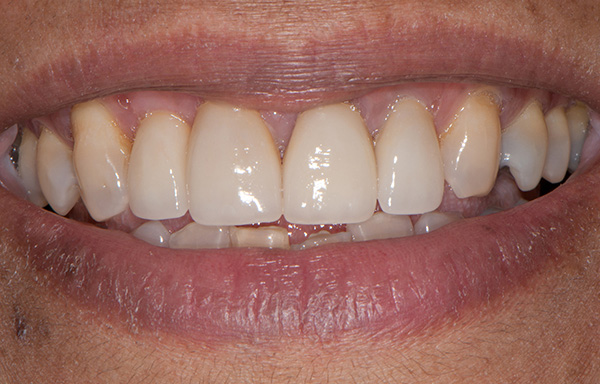 A man who received dental implants in Greenpoint, NY