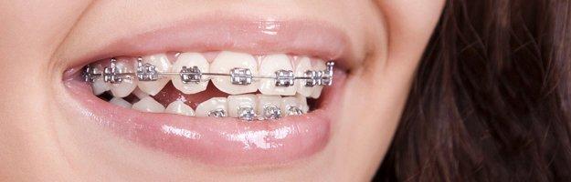 orthodontics-fastbraces-s1-625x200.jpg