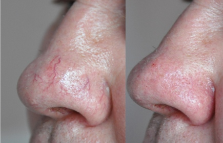 Broken-Capillaries-and-Telangiectasia-Treatment-Nose-Before-and-After