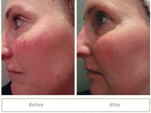 Intense-Pulsed-Light-Photofacial-Before-and-After