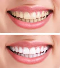 Teeth-Whitening-Before-and-After