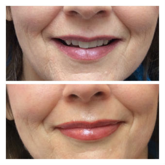 Lip-Pigmentation-Enhancement-Before-and-After