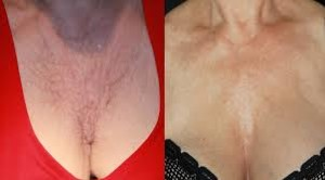 Platelet-Rich-Plasma-Rejuvenation-Before-and-After