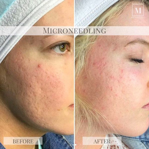 Hyperpigmentation-Reduction-with-CIT-Before-and-After