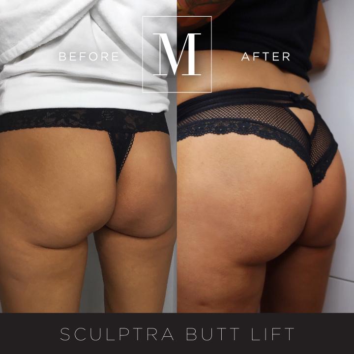 SCULPTRA_Butt-BA3.jpg