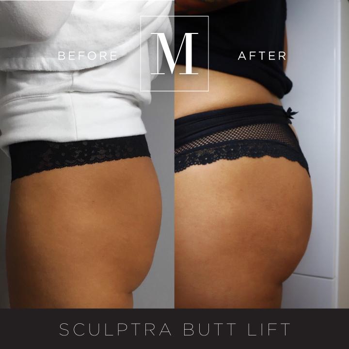 SCULPTRA_Butt-BA4.jpg